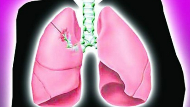 """Major advances seen in """"non-small cell lung cancer"""" treatment"""