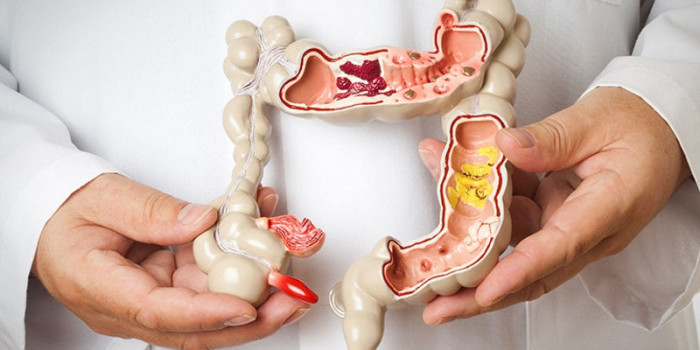New AI System Can Detect Bowel Cancer in Less Than a Second